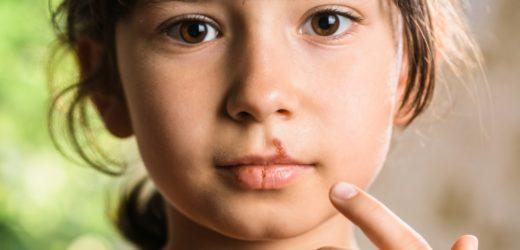 propolis tegen koortsblaasjes